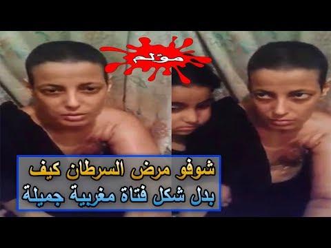 المغرب اليوم  - مرض السرطان يبدل شكل فتاة مغربية جميلة