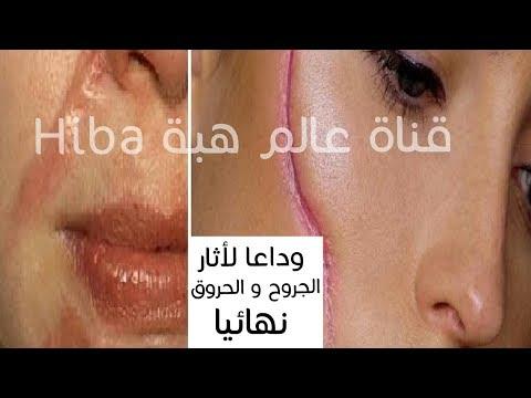 المغرب اليوم  - شاهد وصفات لازالة آثار الجروح و الحروق والندبات نهائيًا