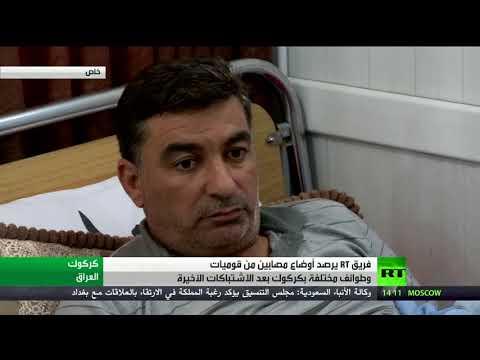 المغرب اليوم - أوضاع مصابي المواجهات في كركوك