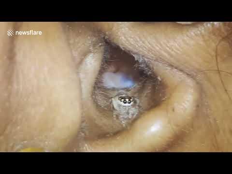 شاهد إخراج عنكبوت حي من أذن امرأة
