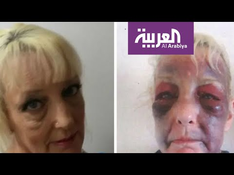 شاهد صور صادمة لعجوز بريطانية تتعرض للضرب من صديقها