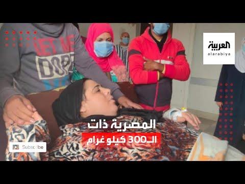 شاهد قصة مصرية تضخم وزنها لـ 300 كيلو غرام