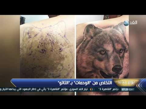 المغرب اليوم  - شاهد التخلص من الوحمات بـالتاتو