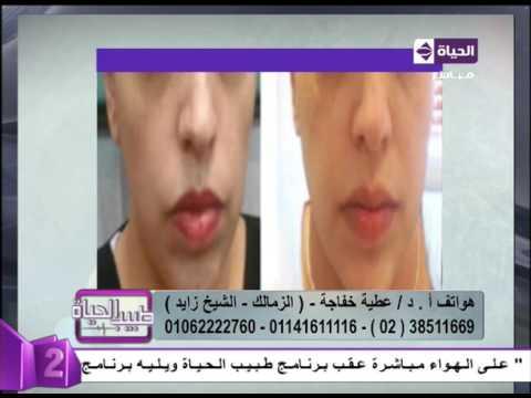 المغرب اليوم  - بالفيديو نتائح مبهرة بعد تجميل شكل الشفايف لدى النساء