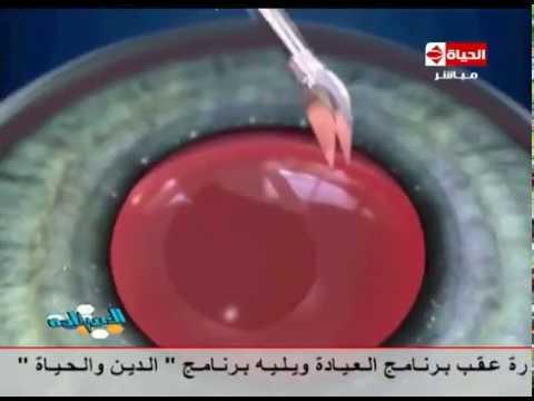 المغرب اليوم  - شاهد فيديو لحالة تجري عملية إزالة المياه البيضاء