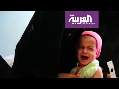 المغرب اليوم  - كابوس الجوع في اليمن يتحول لاسوأ كارثة في العالم