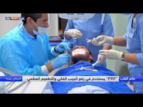 المغرب اليوم  - شاهد تعرّف على الأحدث في زراعة الأسنان
