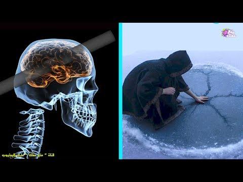 المغرب اليوم  - بالفيديو أشخاص امتلكوا قدرات خارقة بعد إصابات في الدماغ