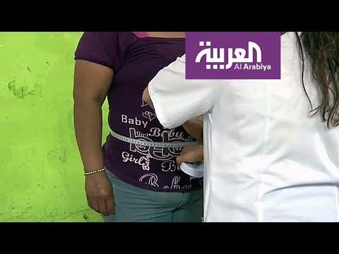 المغرب اليوم  - دراسة تربط بدانة الحامل بتشوهات خلقية للجنين