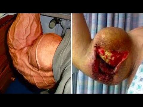المغرب اليوم  - بالفيديو 5 لاعبين كمال الأجسام انفجرت عضلاتهم بشكل مرعب