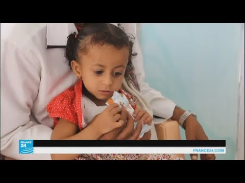 المغرب اليوم  - شاهد المدنيون في صنعاء يدفعون ثمن المعارك المستمرة