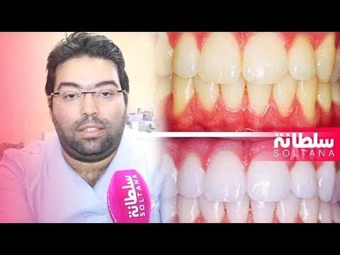 المغرب اليوم  - أخصائي في تجميل الأسنان يكشف لك الخطوات ويحذر من المخاطر