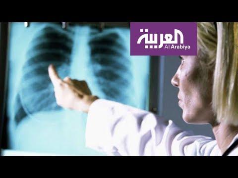 المغرب اليوم  - شاهد السيجارة الالكترونية لا تسبب تجمّع الماء في الرئة