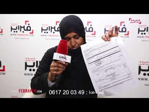 المغرب اليوم  - شاهد الأم التي تعاني من مرض نادر في الرأس أصاب المخ والعينين