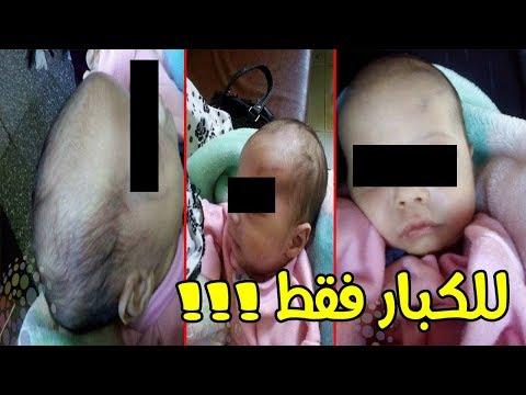 المغرب اليوم  - شاهد  مصري يعتدي على طفله الرضيع ويصيبه بجروح خطيرة