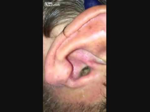 المغرب اليوم - شاهد رجل يُصوِّر أذنه بالموبايل فيجد مفاجأة مرعبة