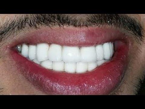 شاهد تبيض الأسنان وإزالة الجير والإصفرار في دقيقتين