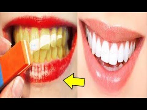 بالفيديو وصفة منزلية لتبييض الأسنان في أقل من دقيقتين