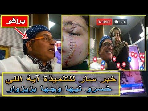 طبيب تجميل يعلن أنه سيجري عملية للتلميذة المغربية آية