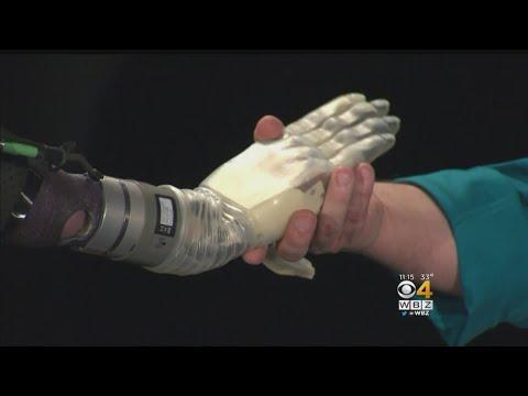 شاهد ابتكار ذراع اصطناعي كامل يتحرك مع إشارات العضلات