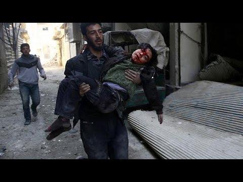 شاهد الكشف عن نسبة سوء التغذية في صفوف أطفال الغوطة في سورية