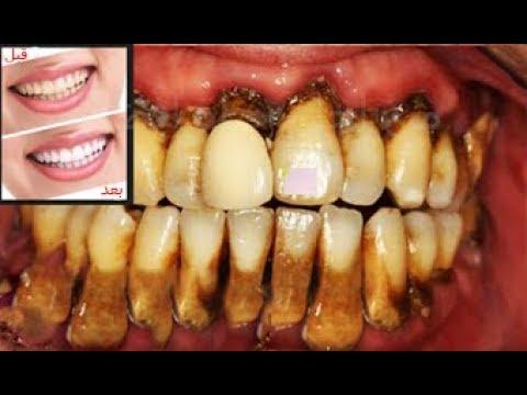 كيفيه تبييض الأسنان بطريقة طبيعية صحية