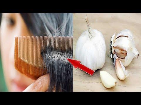 الثوم هو علاج لأخطر مرض ممكن أن يصيب فروة رأسك