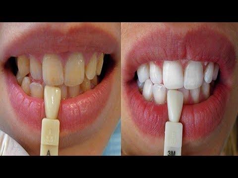طريقة لتبييض الأسنان بسهولة