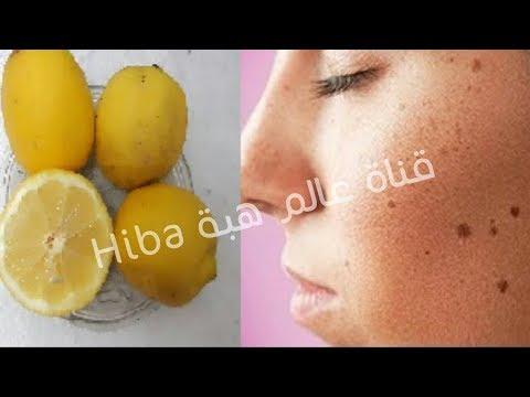 كيفية استخدام الليمون للتخلص من البقع الداكنة