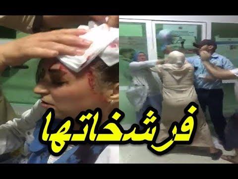 مواطنة تشق رأس ممرضة بالمستشفى الإقليمي في تاونات