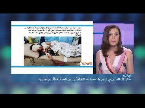 شاهد المجزرة الجنوبية واستهداف المدنيين في اليمن