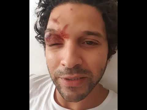 شاهد حقيقة تعرّض الفنان المغربي أنس الباز لحادثة سير