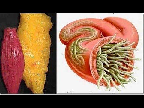 شاهد تخلصي من كل الدهون والطفيليات في جسمكم مع الليمون والكرفس