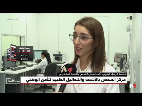 شاهد تدشين مركز الفحص بالأشعة والتحاليل الطبية للأمن الوطني