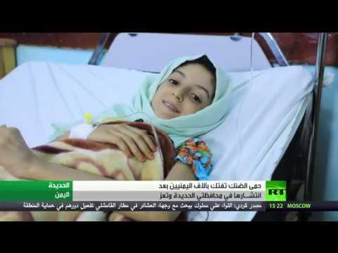 شاهد حمى الضنك تجتاح مناطق في اليمن وتسجيل آلاف المرضى