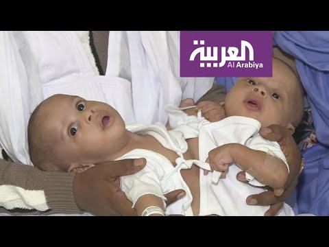 شاهد التوأم السيامي رقم 108 يصل إلى السعودية لبحث إجراء عملية الفصل