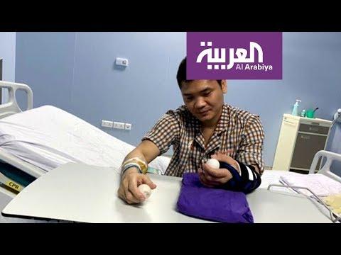 شاهد نجاح أول عملية جراحية لزرع كف من متبرع حي