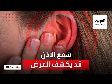 شاهد شمع الأذن قد يكشف الإصابة بمرض شائع
